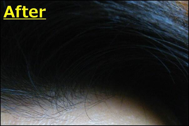 イクオス使用後の頭皮